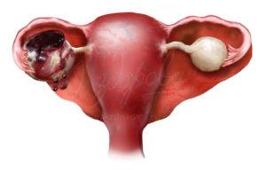 разрыв яичника