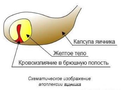 Схема апоплексии яичника