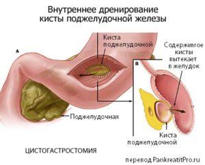 цистогастростомия