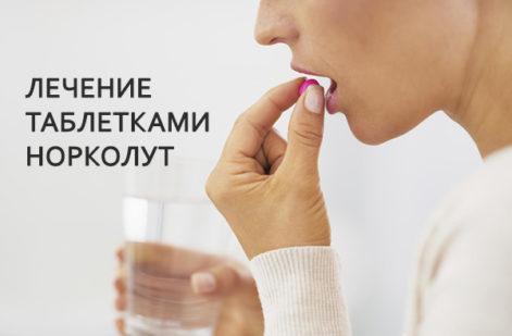Лечение таблетками норколут