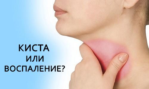 Ретенционная киста в горле