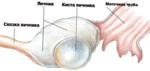 киста левого яичника
