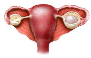 Киста яичника лечение народными средствами боровая матка