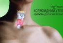 Лечение коллоидного узла щитовидной железы и причины его появления