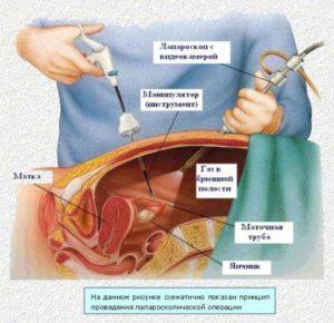 Операция лапароскопия кисты яичника