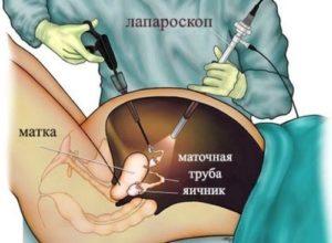 Схема лапароскопии яичника