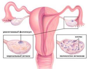 сравнение яичников
