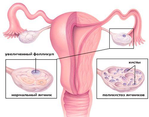 Поликистоз и беременность возможно ли