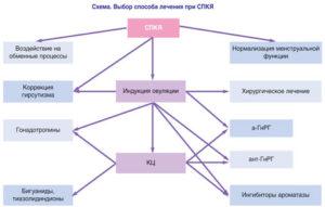 Схема способов лечения СПКЯ
