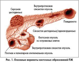 Виды кистозных образований ПЖ