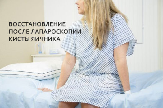 Как быстро восстановиться после лапароскопии кисты яичника