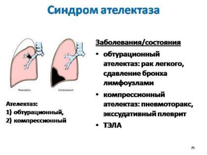 синдром ателектаза