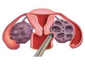 биопсия яичника