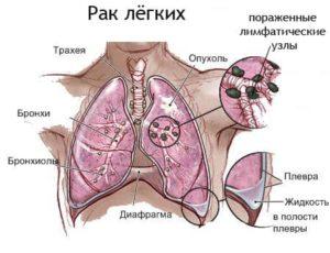 рак легких схема