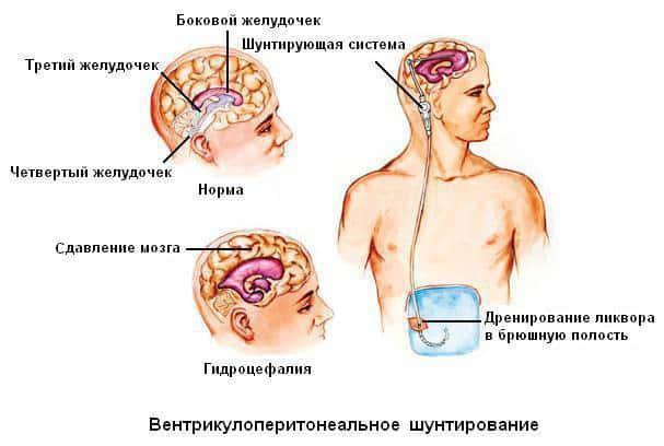 Длительный дренаж желудочков мозга