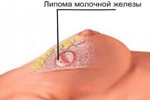 образование в грудине