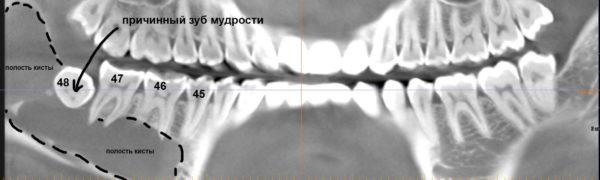снимок кисты челюсти