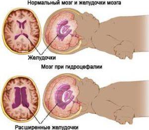 мозг при гидроцефалии