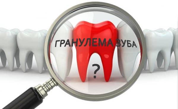 Кистогранулема зуба лечение