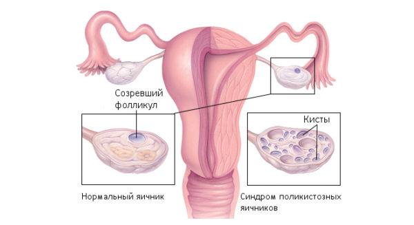 Стимуляция овуляции при кисте молочной железы