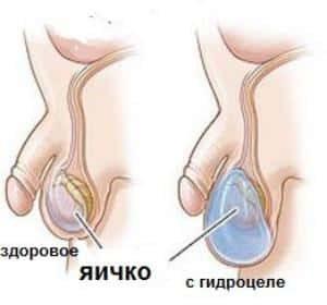 здоровое яичко и больное