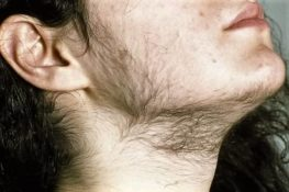 рост волос у женщин