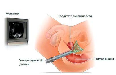 Поставили опухолевидное образование яичника что это