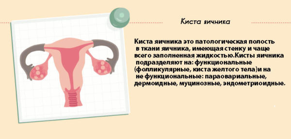 как лечить яичник