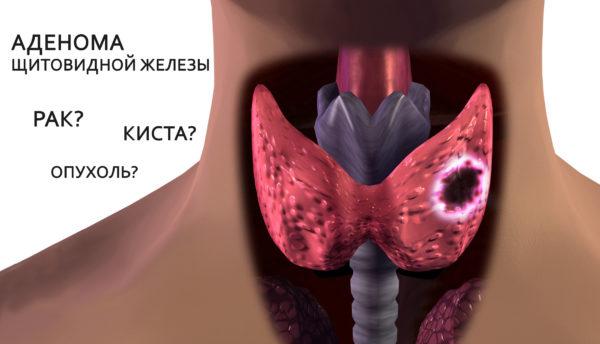что такое аденома щитовидки