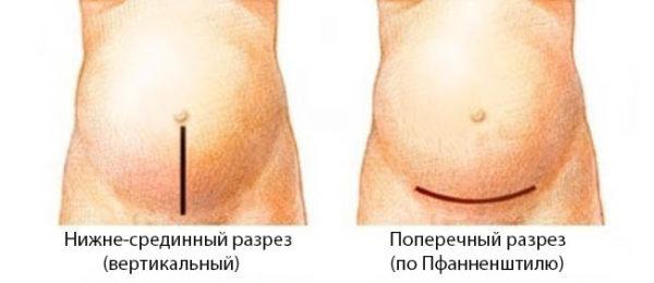 Лапаротомия операция