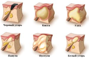 виды образований под кожей
