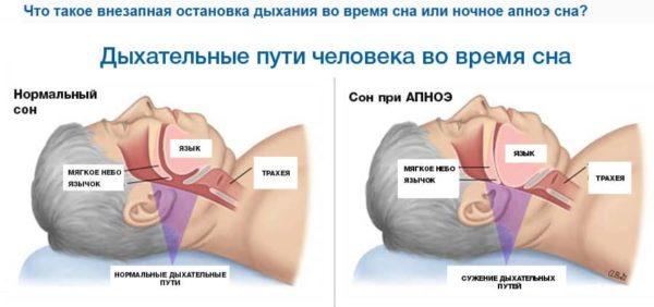 что такое апноэ