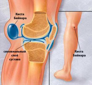Изображение - Кисты беккера коленных суставов bakers-cyst-1-300x277