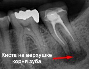 снимок кисты зуба