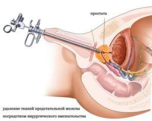 Уретральная пункция простаты