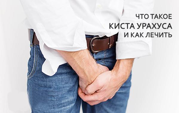 Киста урахуса у мужчин, женщин и детей: симптомы и лечение