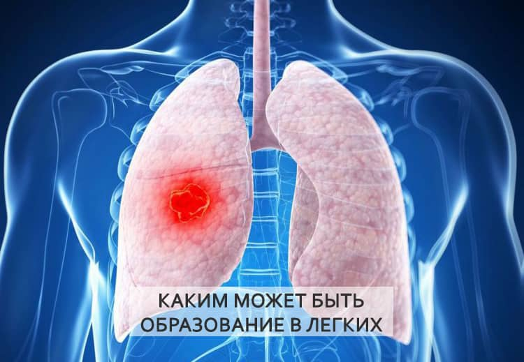 Симптомы опухоли в легких — первые признаки и лечение