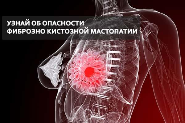 Фиброзно кистозная мастопатия молочных желез: симптомы и лечение ФКМ