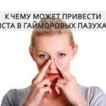 заложенность носа к чему может привести