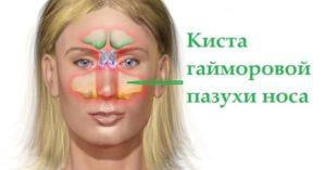 схема кисты в носу