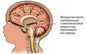 ликвор в мозгу у ребенка