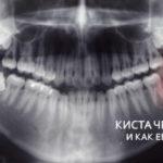 что такое киста челюсти