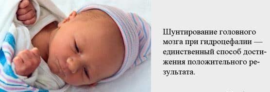 шунтирование мозга младенца