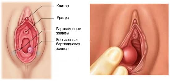 схема влагалища с воспалением