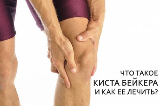 Киста коленного сустава – киста бейкера (беккера), лечение и операция