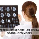 снимок мрт мозга