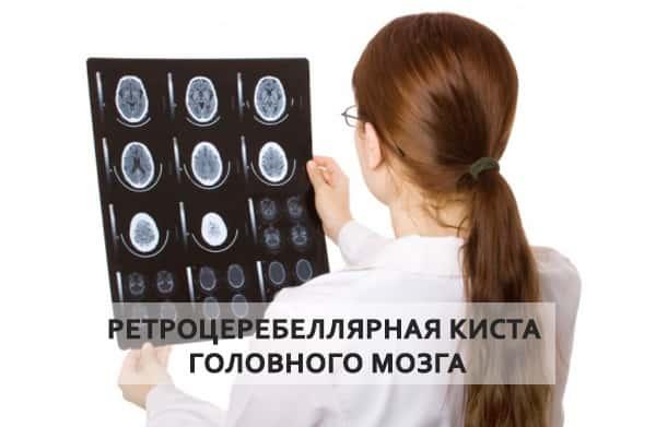 Врожденная ретроцеребеллярная киста головного мозга