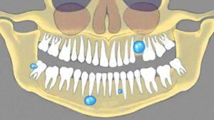 виды образований зубов