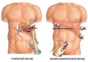 лапароскопия кисты селезенки