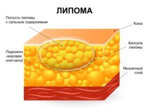 Что такое жировик